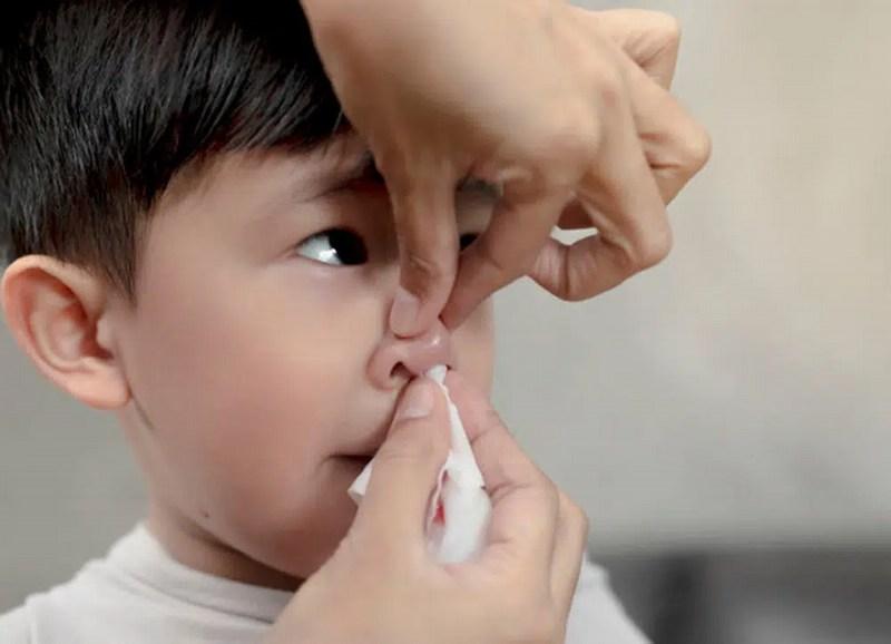 Cha mẹ cần cầm máu cho trẻ nhanh chóng tránh gây hiện tượng mất máu
