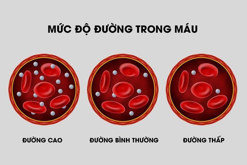 3 mức độ của chỉ số đường huyết