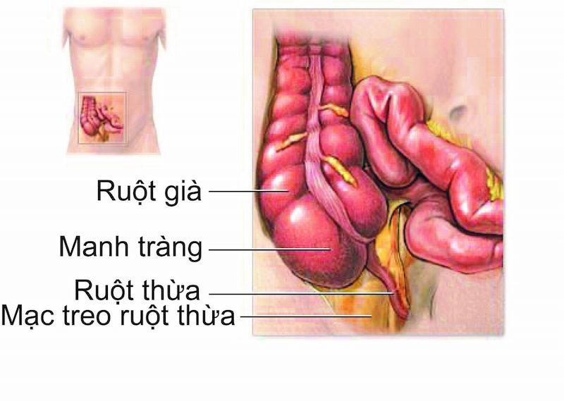 Vị trí ruột thừa trong ổ bụng
