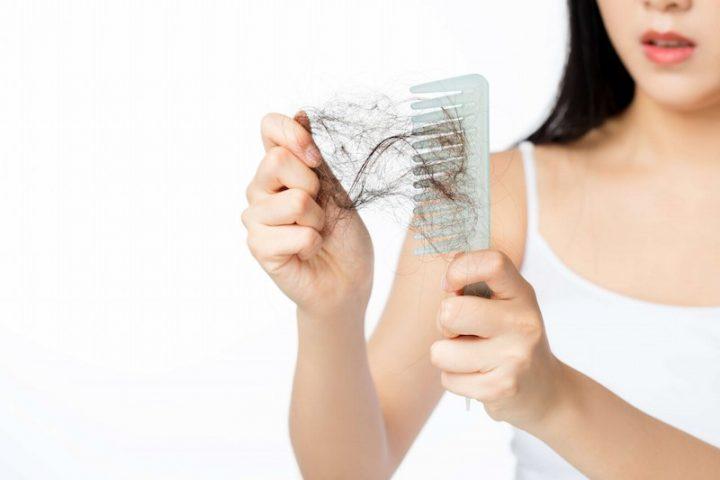Rụng tóc là tình trạng dễ gặp phải ở phụ nữ sau sinh