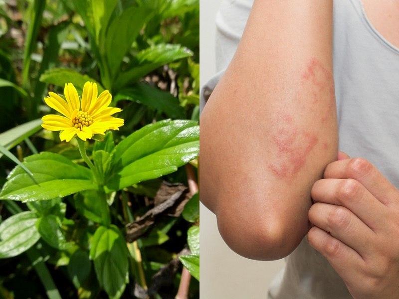 Khi bị mẩn ngứa bạn có thể sử dụng sài đất để cải thiện triệu chứng