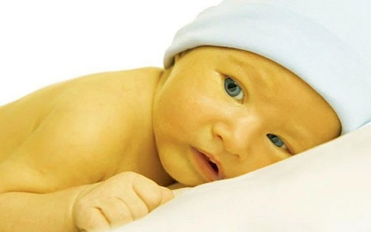 Vàng da sơ sinh có thể xảy ra do sinh lý hoặc bệnh lý