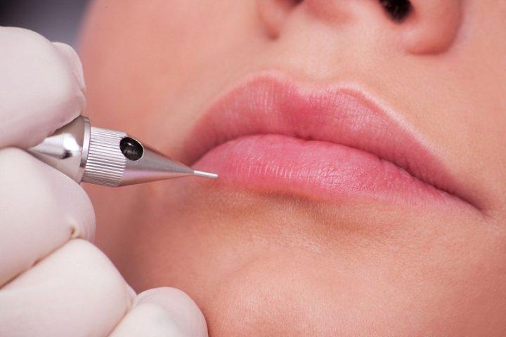 Người bị tiểu đường có xăm môi được không?