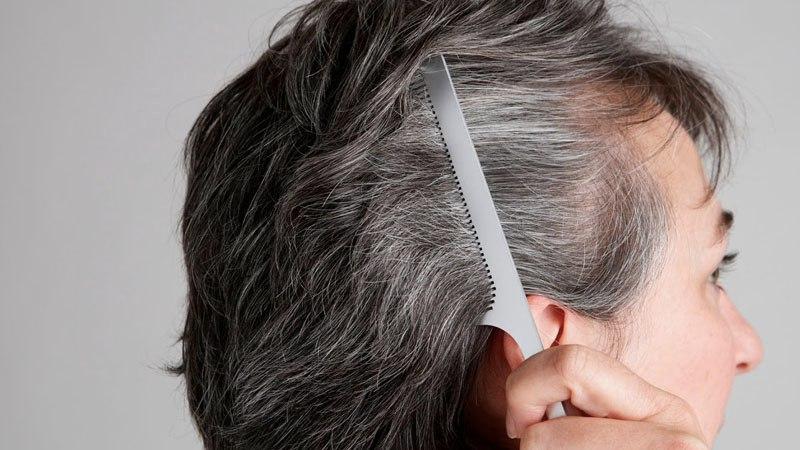 Tóc bạc sớm có thể là triệu chứng do một số bệnh lý gây nên