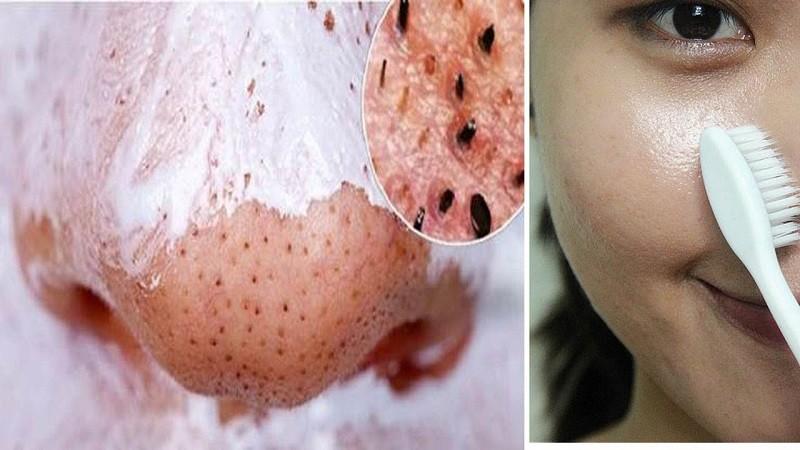 Sử dụng kem đánh răng trị mụn hiệu quả