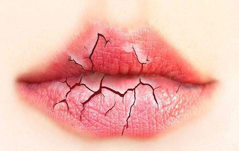 Những bệnh nhân mắc bệnh tiểu đường thường gặp phải tình trạng khô miệng