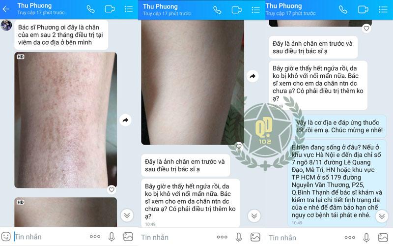 Phản hồi trực tiếp từ bệnh nhân điều trị viêm da tại Quân dân 102