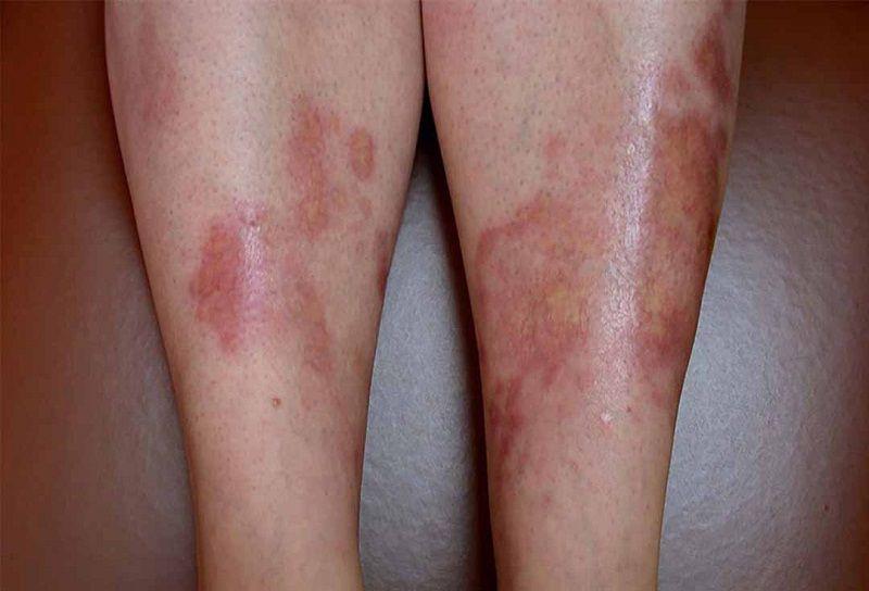 Những biến chứng khác về da mà người bệnh tiểu đường gặp phải