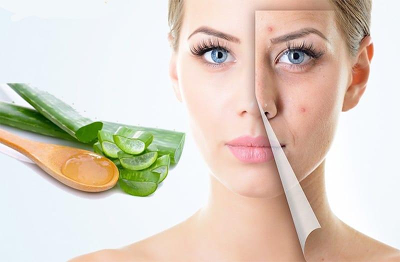 Nha đam giúp làm dịu da, loại bỏ mụn dư thừa hiệu quả