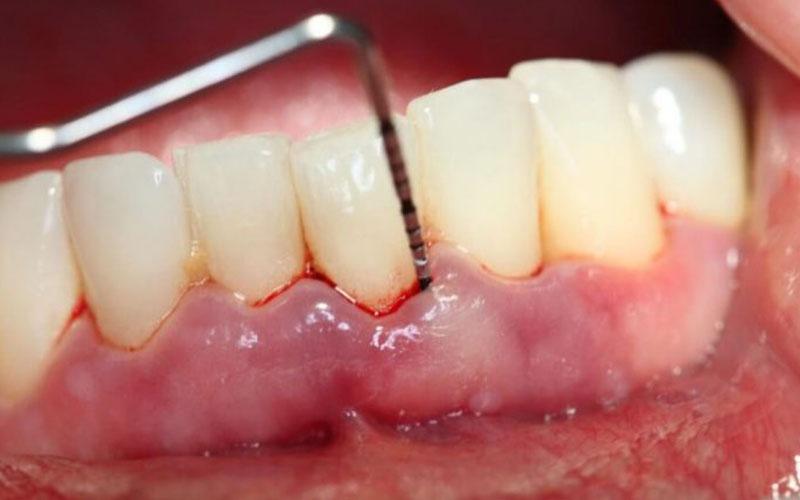 Hạt gấc ngâm rượu có tác dụng hiệu quả trong việc điều trị bệnh lý về răng miệng