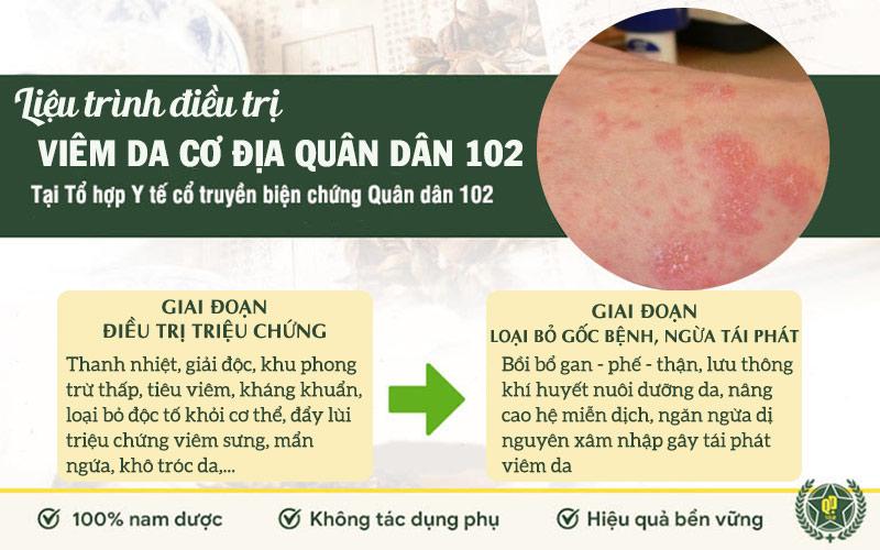 Liệu trình điều trị viêm da cơ địa Quân dân 102 gồm 2 giai đoạn