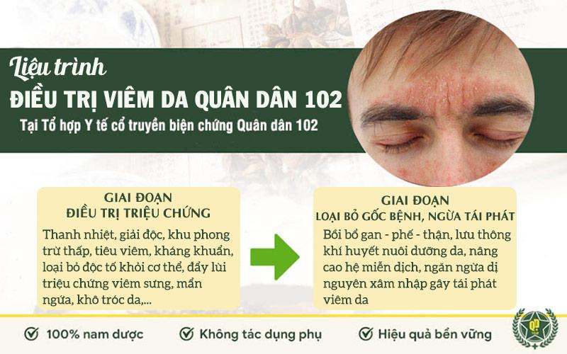 Liệu trình điều trị viêm da Quân dân 102