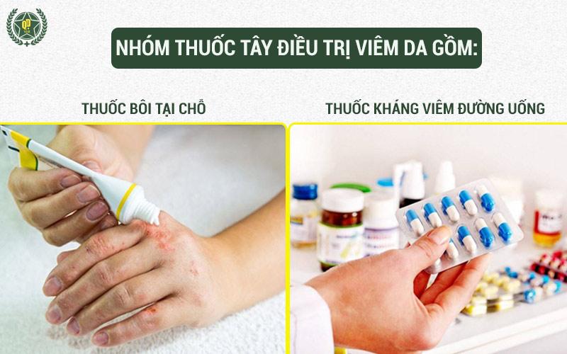 Nhóm thuốc Tây thường được chỉ định trong điều trị viêm da