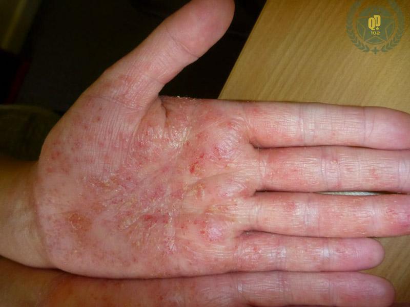 Quá trình điều trị không thành công đã khiến Hiền đối mặt với nguy cơ biến chứng nhiễm khuẩn thứ phát