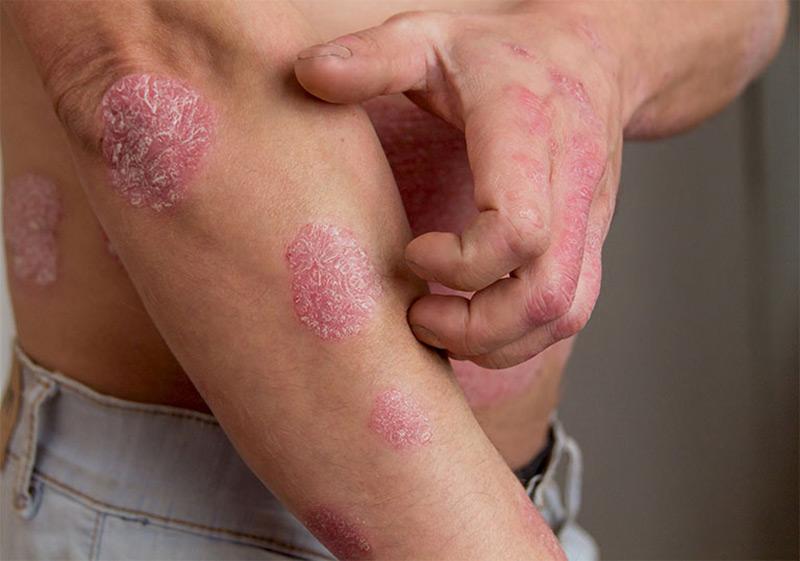 Các tổn thương vảy nến thường có xu hướng khu trú tại một vùng da nhất định