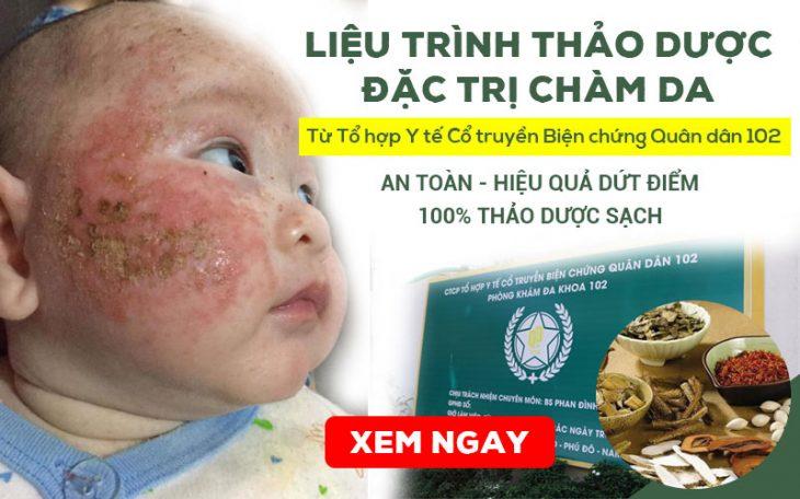Liệu trình thảo dược ĐẶC TRỊ bệnh Chàm (Eczema) Quân Dân 102 hiệu quả, an toàn với trẻ nhỏ