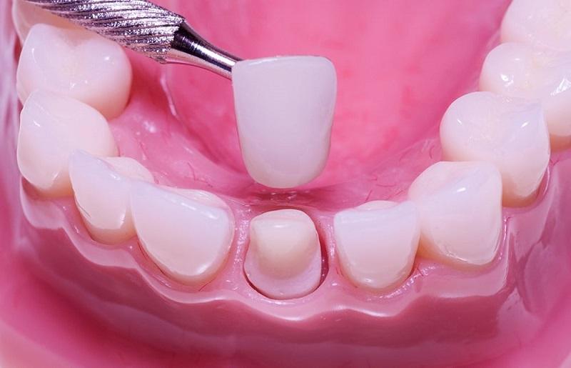 Bọc răng sứ có bị hôi miệng không phụ thuộc vào nhiều yếu tố