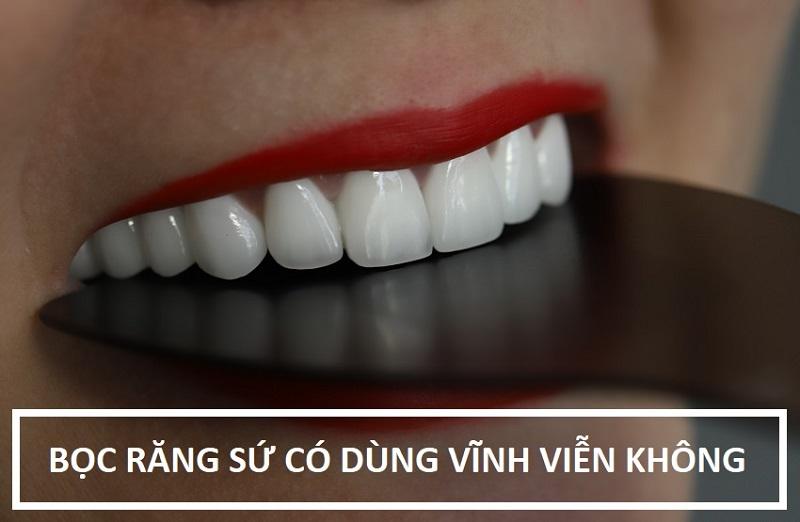 Bọc răng sứ có được vĩnh việc không phụ thuộc vào nhiều yếu tố