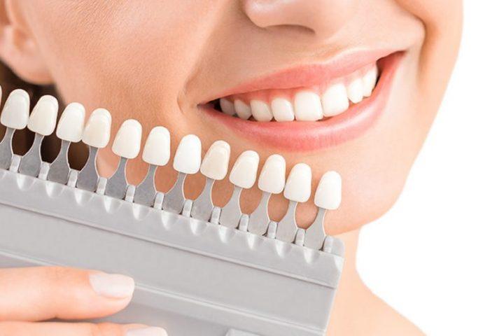 Có nên bọc răng sứ không là thắc mắc của rất nhiều người