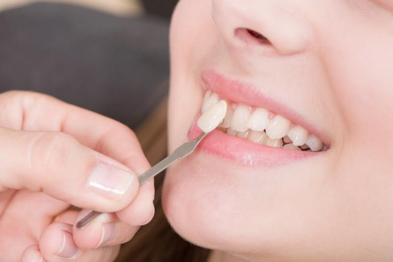 Mục đích chính của bọc răng sứ là tăng tính thẩm mỹ cho hàm răng