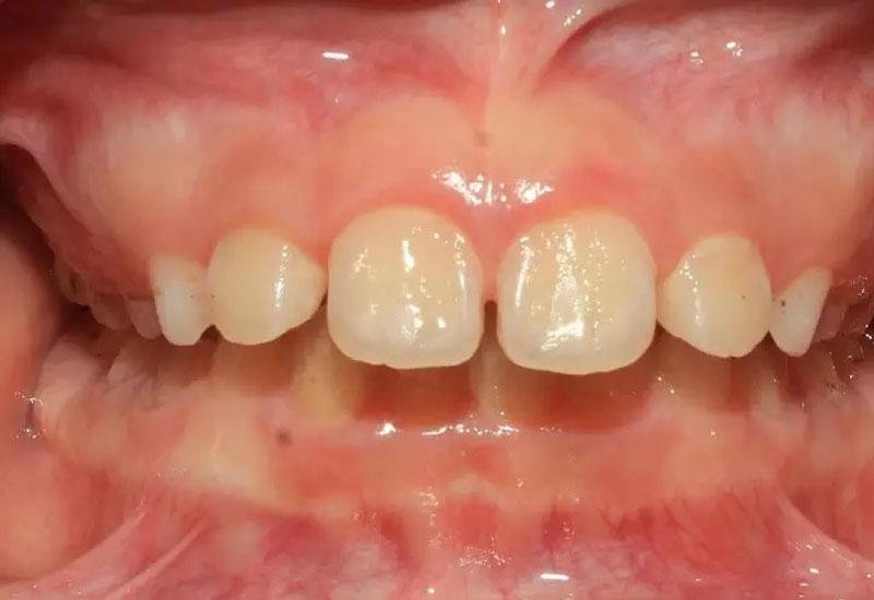 Tình trạng sai khớp cắn quá nặng sẽ cần phải sử dụng biện pháp niềng răng đẻ khắc phục