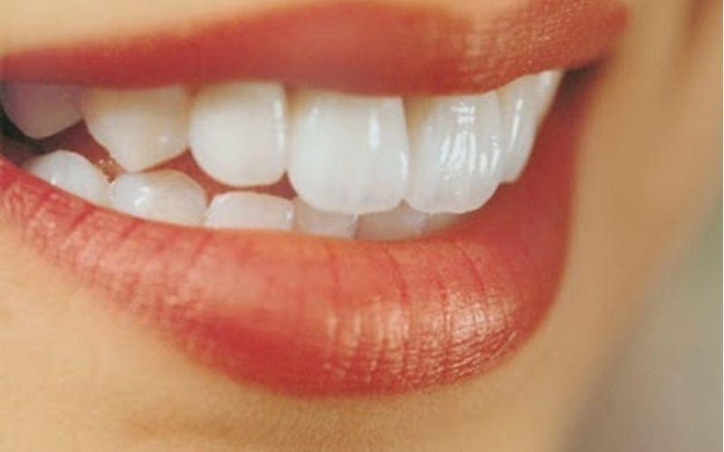 Khi nào nên bọc răng sứ? Khi răng bị hô nhẹ