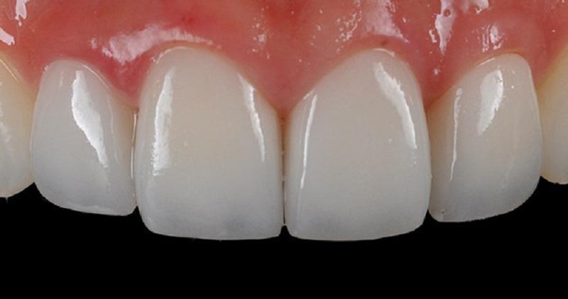 Hàm được làm từ răng toàn sứ