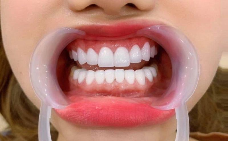 Nên bọc răng sứ tại cơ sở nha khoa uy tín để đảm bảo chất lượng tốt nhất