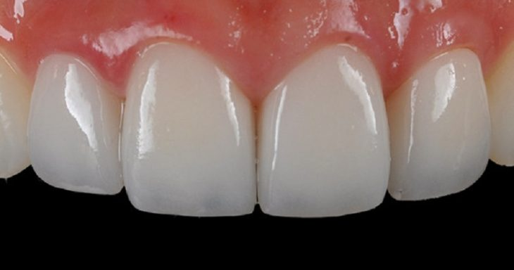 Khi răng có các khuyết điểm nhỏ thì bạn nên bọc răng sứ
