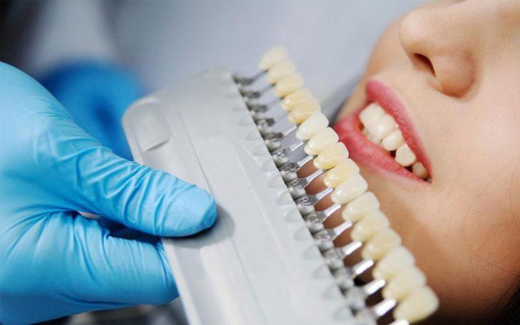 Quy trình bọc răng sứ chuẩn bao gồm những bước nào được rất nhiều người quan tâm tìm hiểu