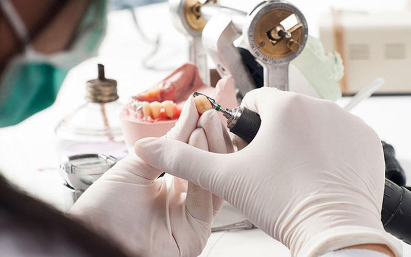 Hình ảnh chế tác răng sứ