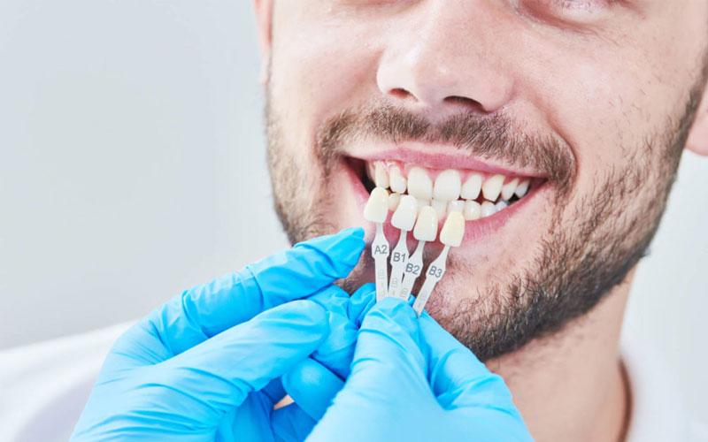 Khách hàng sẽ được gắn thử răng sứ để trải nghiệm trước