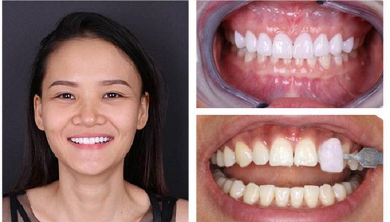 Quá trình trước và sau khi bọc răng sứ