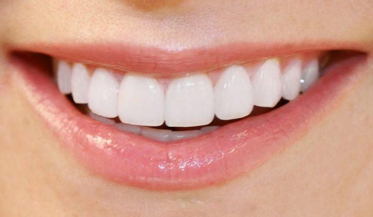Hình ảnh trước và sau khi bọc răng sứ sẽ có sự khác biệt đáng kinh ngạc