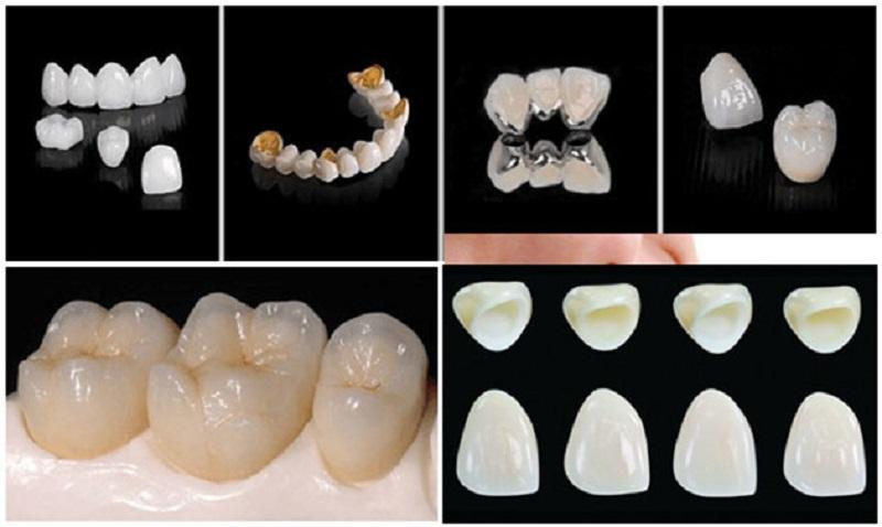 Các loại răng sứ phổ biến